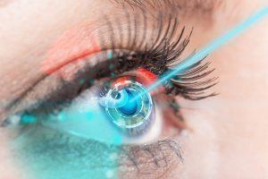 Göz lazer tedavisi nasıl yapılır