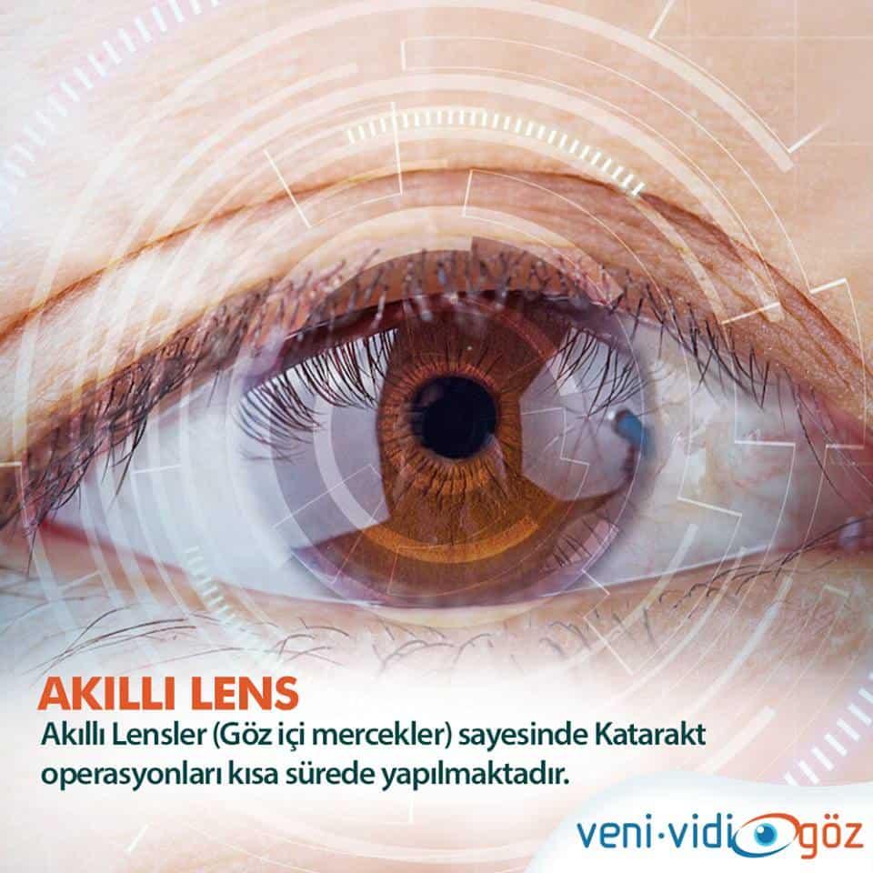 Akıllı Lens Tedavisi Kimlere Uygulanır ?