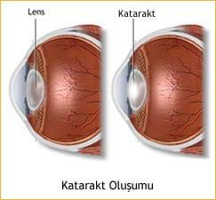 katarakt ameliyatı sonrası