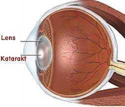 katarakt-cerrahisi