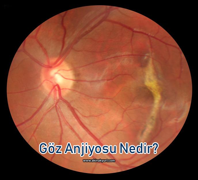 Göz Anjiyosu Nedir? Göz Anjiyosu Nasıl Yapılır?