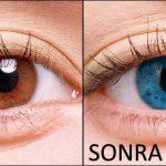 Lazer İle Göz Rengi Değiştirme