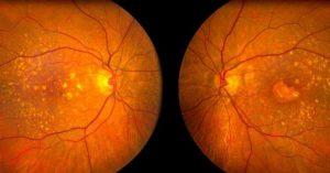 Makrovision ameliyatı sarı nokta hastalığı